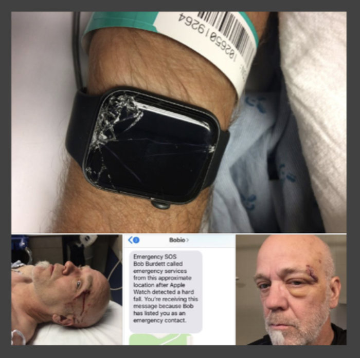 Man credits this Apple Watch feature for helping save his father - pics of his watch and injuries in hospital